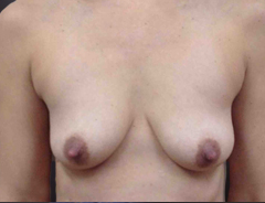 Front view, before breast augmentation & lift: 32A