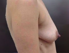 Side View, Breast Augmenation & Lift, Before: 36A