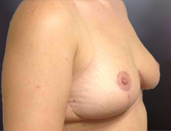 Angle view extended breast lift, after