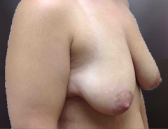 Angle view extended breast lift, before