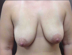 Front Extended Breast Lift, Before