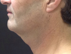 Left Side View, Neck Lift, before