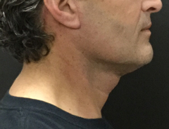 Right Side View, Neck Lift, after