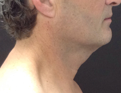 Right Side View, Neck Lift, before