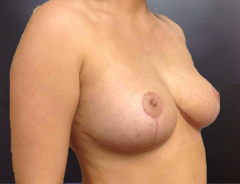 Angle view, breast reduction, after