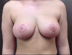 Front view, breast reduction, after