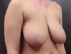 Angle view, breast reduction, before