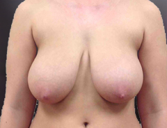 Front view, breast reduction, before