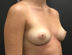 Breast Aug, Angle, 34B