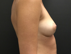 Breast Aug, Side, 34B