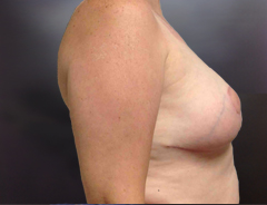 Side view, breast reduction, after