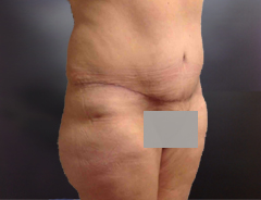 Full Tummy tuck after angle