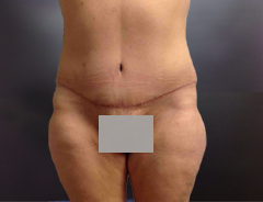 Full Tummy tuck after front