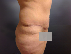 Full Tummy tuck after side