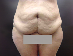 Full Tummy tuck before front