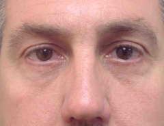 Lower blepharoplasty, after