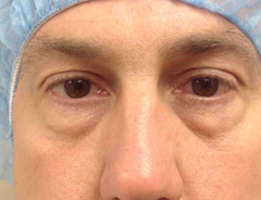 Lower blepharoplasty, before