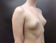 Half Profile before breast augmentation: 34B