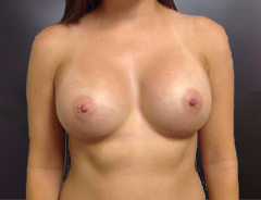 Front View After breast augmentation: 34C