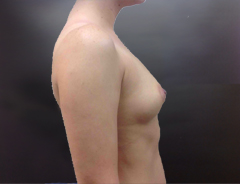 Profile before breast augmentation: 34B