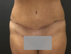 Tummy Tuck, Full, Front, After