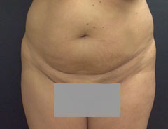 Tummy Tuck, Full, Front, Before