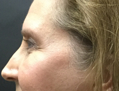Eyelid lift after facing left
