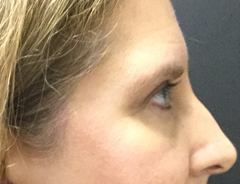 Eyelid lift after facing right