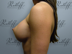 Profile before breast aug: 34B to 34C