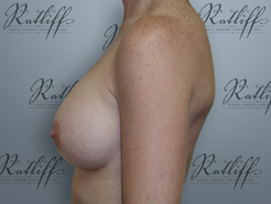 Profile before breast aug: 34A to 34C