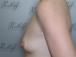 Profile before breast augmentation: 34A