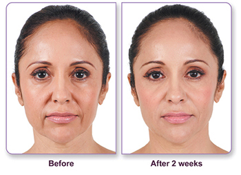 Fillers and Injectables | Tulsa Oklahoma