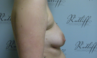 Patient 1 implants only side before