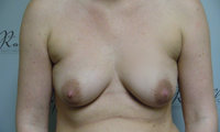 Patient 1 implants only front before