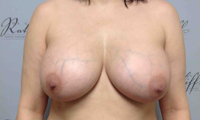 Patient 2 implants only front after