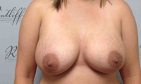 Patient 3 implants only front after