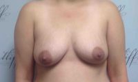Patient 3 implants only front before