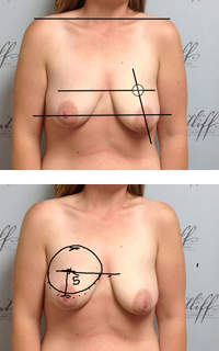Patient with diagrams measuring breast